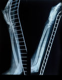 X-Ray image of human hand and arm after a fracture on the metal Stock Image