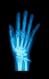 X-Ray image of human hands Royalty Free Stock Image