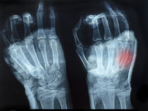 X-Ray image of human hands with top hand shown red Royalty Free Stock Photography