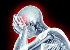 x-ray image human head with pain Stock Images