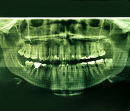 X-Ray image of a human jaw. Mouth and teeth with plumbing Stock Images