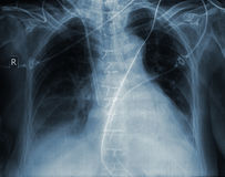 X-ray image of human ribcage Royalty Free Stock Image