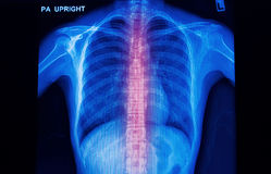 X-ray image of human spinal column royalty free stock photo