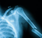 X-ray image of humerus fracture Stock Images