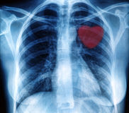Chest X-ray image Royalty Free Stock Photography