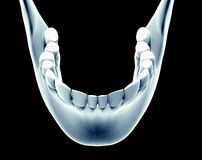 X-ray image of a jaw with teeth Stock Photography