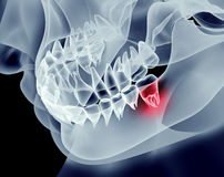 X-ray image of a jaw with teeth. With one in pain Stock Image