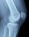 X-Ray image of a knee. Detailed X-ray of a healthy human right knee. Image created using modern digital radiography Stock Photo