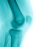 X-Ray image of a knee. Detailed X-ray of a healthy human right knee. Image created using modern digital radiography royalty free stock image