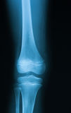 X-ray image of knee joint. Royalty Free Stock Photo