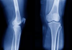 X-ray image of knee joint show mild degenerative change. X-ray OA knee both knee in blue tone, x-ray image of knee joint show mild degenerative change royalty free stock photography