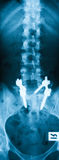 X-ray image of L-S spine, AP view. Stock Image