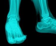 X-Ray. Image of leg Stock Images