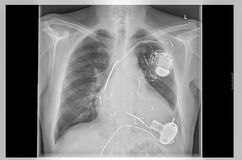 X-ray image, links, artificial heart pacemaker. Radiograph left side of the chest. Vergößertes heart with implanted pacemaker system. Below are the pump of stock image