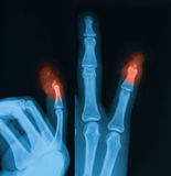 X-ray image of little finger fracture. Stock Image