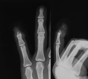 X-ray image of little finger fracture. Stock Images