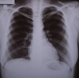 X-ray image of lungs. With light two-sided bronchitis stock images
