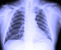 X-Ray image of male human chest. For TB screening royalty free stock images