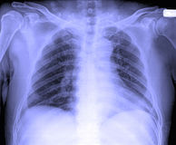 X-Ray image of male human chest stock photo