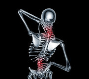 X-ray image man with back pain with clipping path Stock Photography