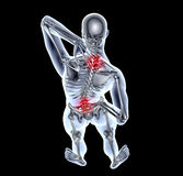X-ray image man with back pain with clipping path Royalty Free Stock Photos