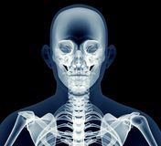 X-ray image of a man isolated on black Stock Photography