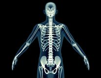 X-ray image of a man isolated on black Royalty Free Stock Photography