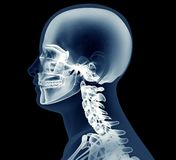X-ray image of a man isolated on black Stock Photo