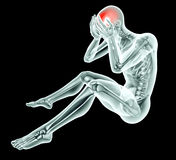 X-ray image of a man with pain on black with clipping path Stock Images