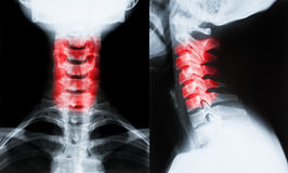 X-ray image of neck. Cervical spine isolated on black background stock photo