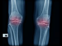 X-ray image of OA knee. AP and lateral view royalty free stock image
