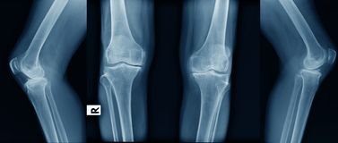 X-ray image of OA knee. In blue tone royalty free stock photos