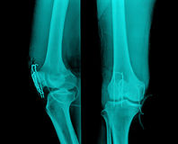 X-Ray. Image of painful knee joint Stock Photos