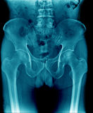 X-ray image pelvic bone and part of femur, spine stock photos