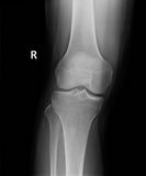 X-Ray image of perfect knee and leg Royalty Free Stock Photos