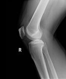 X-Ray image of perfect knee and leg Stock Photography