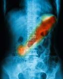 X-ray image of plain abdomen supine. Stock Images