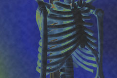 X-ray image of the rib of man. royalty free stock images
