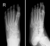X-ray image of right foot show fracture fifth finger. Fracture of the fifth toe of the right foot royalty free stock image