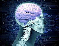 X-ray image of a scull with a brain and circuit board chip Royalty Free Stock Photos