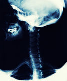 X Ray Image Showing Skull, Jaw And Spine stock photo