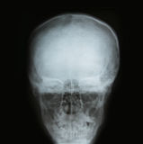 X-ray image of the skull Royalty Free Stock Photos