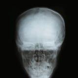 X-ray image of the skull Royalty Free Stock Photos