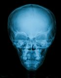 X-ray image of skull, AP view Stock Images