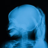 X-ray image of skull, a crying baby with parent hand. Royalty Free Stock Image