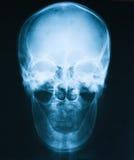 X-ray image of skull, a man loss of teeth. Royalty Free Stock Photos