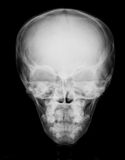 X-ray image of skull,PA view Royalty Free Stock Image