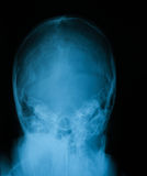 X-ray image of skull. Royalty Free Stock Photography