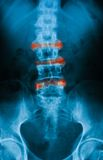 X-ray image of spine, AP view. Stock Images