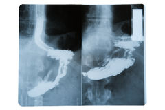 X-ray image of stomach on white Stock Image